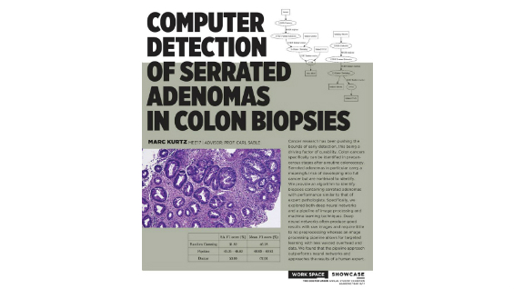 [STUDENT POSTER] COMPUTER DETECTION OF SERRATED ADENOMAS IN COLON BIOPSIES